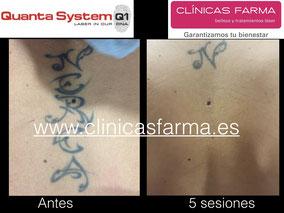 """Paciente de Clínicas Farma C/ Magnus Blikstad que no desea eliminar la letra """"N"""". Tratamiento finalizado."""