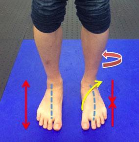 写真2)左脚のみスネが外に回旋した状態