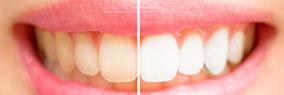 Zahnästhetik Zahnarzt Domsch