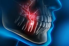Zahnarztpraxis Domsch Wurzelbehandlung