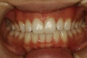 隙っ歯 治療後