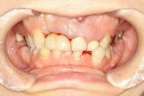 歯の根っこの痛み