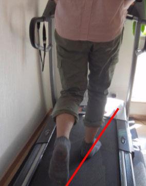 膝痛 膝の痛み