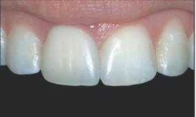 Estética dental en San Fernando de Henares