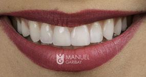 Diseño de Sonrisa | Smile Design