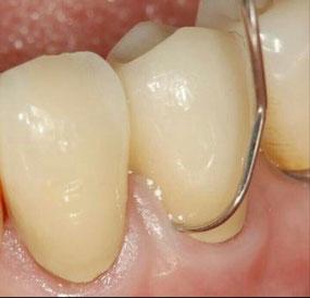八戸市 くぼた歯科医院 歯周病 虫歯 ホワイトニング