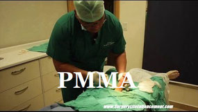 Medical PMMA Girth Injection Procedures