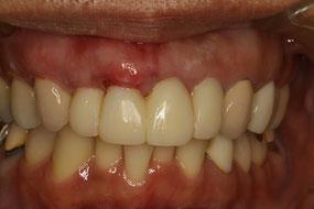 歯茎の移植後1週間の状態