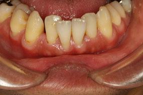 治療前 前歯が噛み合わせると揺れてしまうケース