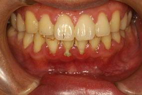 歯周内科治療前