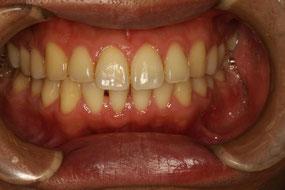 歯周内科後1週間の状態