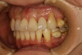 歯茎が下がってしまった状態