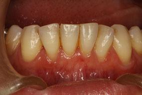 治療前の歯茎