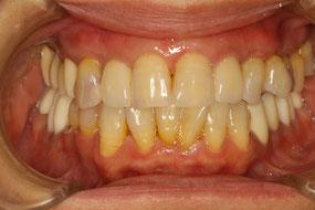 下がった歯茎の治療