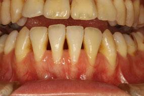 下がりやすい歯茎