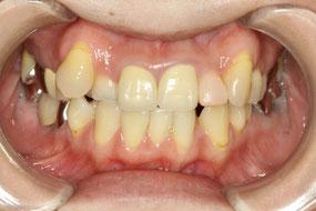 八重歯の歯茎は下がりやすい