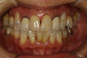 前歯の歯茎が下がってしまった場合