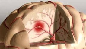 http://entremujeres.clarin.com/vida-sana/salud/ACV-prevenirlo-sintomas_0_1334275364.html