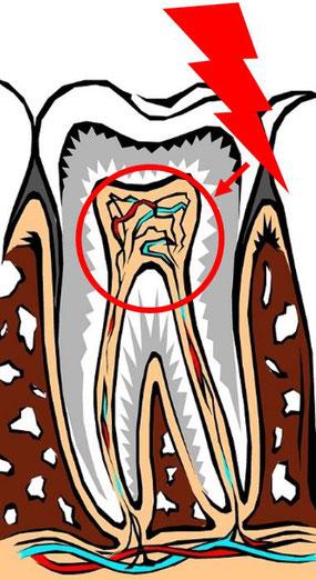 Zahnwurzel