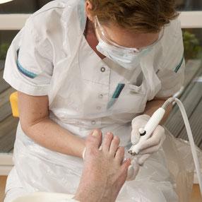 Pedicure Wempe te Lelystad verzorgt uw voeten op een professionele manier