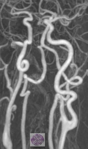Gefährliche Schlaufen in beiden Halsarterien