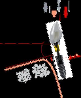 Xive Implantat von Dentsply - Zahnarzt Knittelfeld - Zahnarztpraxis Knittelfeld - zahnarzt-knittelfeld.at