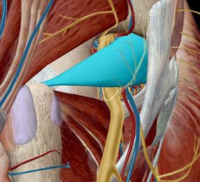 坐骨神経痛 梨状筋 圧迫