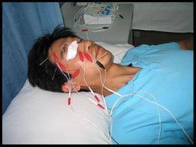 Acupunctuur behandeling bij nervus facialis parese in China (foto gemaakt door Marina van Kuilenburg)