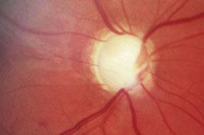 excavierte Papille als Zeichen der Schädigung des Sehnerven beim Glaukom; fortschreitende Gesichtsfeldausfälle bis hin zur Erblindung sind die Folge.