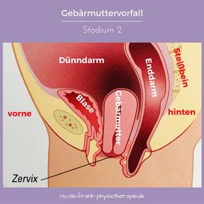 Abgeknickte gebärmutter