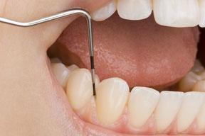 Parodontose-Behandlung zur Therapie von Zahnfleischbluten, Zahnfleischentzündung, Zahnfleischrückgang, Zahnlockerung und Knochenabbau