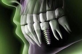 Zahnimplantate für sicheren, festen Halt und perfekte Ästhetik, minimalinvasive, schonende OP-Technik, Knochenaufbau, sichere navigierte Implantation, präzise 3-D-Diagnostik mittels DVT