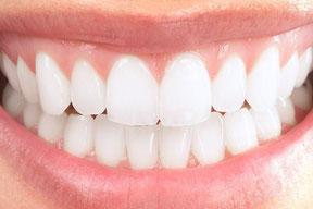 schöne Zähne durch vollkeramischen Zahnersatz, Vollkeramikkronen- und brücken, Bleaching (Zahnaufhellung), Veneers (Verblendschalen)