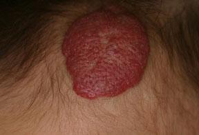 額の苺状血管腫