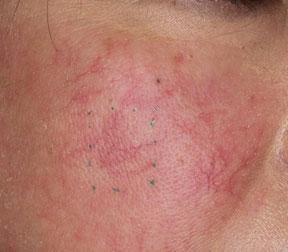 頬の毛細血管拡張症