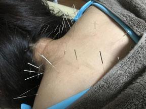 小牧 鍼灸 はり 治療 腰痛 坐骨神経痛 肩こり 自律神経 頭痛 めまい 過敏性腸症候群 下痢 便秘 食欲不振
