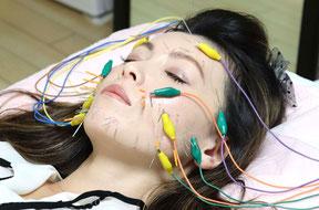 電気を流す美容鍼