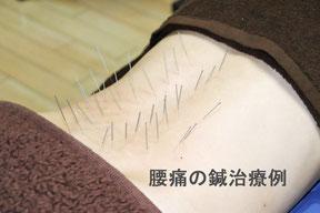 腰痛の鍼治療例