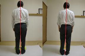 越前市の脊柱管狭窄症の患者さんの写真。しんそう福井武生ですっかり改善しました。