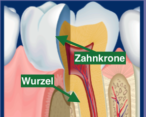Zahn mit Zahnkrone und Wurzel