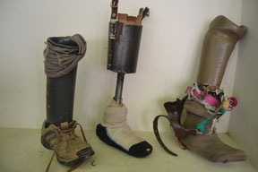 Prótesis antiguas
