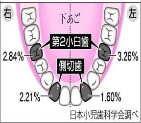 八戸 歯医者 小児歯科 乳歯 抜歯 フッ素
