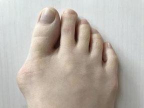 外反母趾で痛い