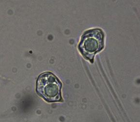 Typische Sporenform der Rötlinge