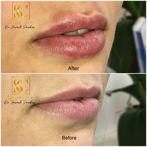 Lip filler injection Dr Sarah Parkes Skin Clinic