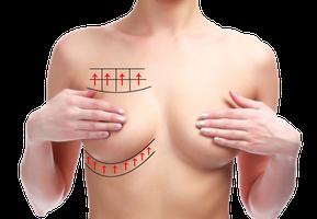Frau mit nacktem Oberkörper Hände über Brüste rot eingezeichnete Pfeile Kreuze unterhalb und oberhalb der rechten Brust