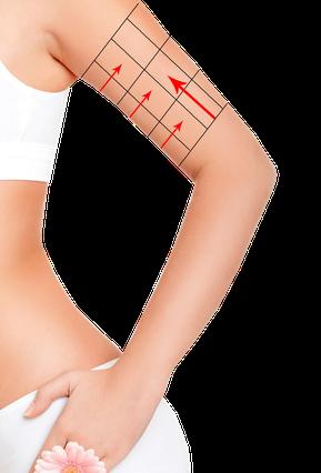 Frau mit weißer Unterwäsche rot eingezeichnete Pfeile Kreuze an linkem Oberarm