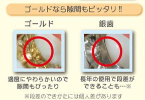 new style 7d211 34c5f 金属アレルギーにならないセラミック治療 八戸市くぼた歯科医院 ...