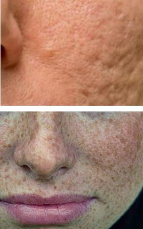 como quitar manchas negras de acne de la cara