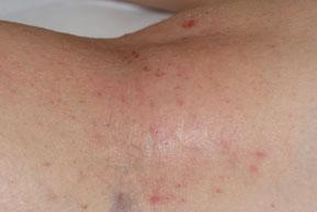 pli de genou recouvert d'eczema